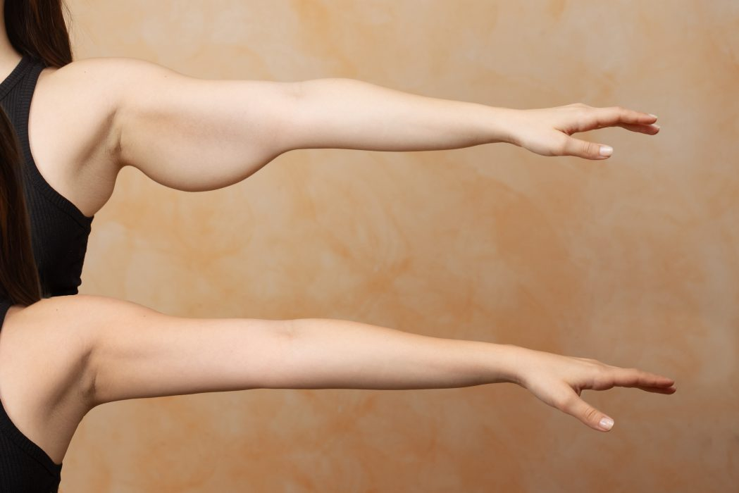 A before and after brachioplasty view on the arm of a Caucasian