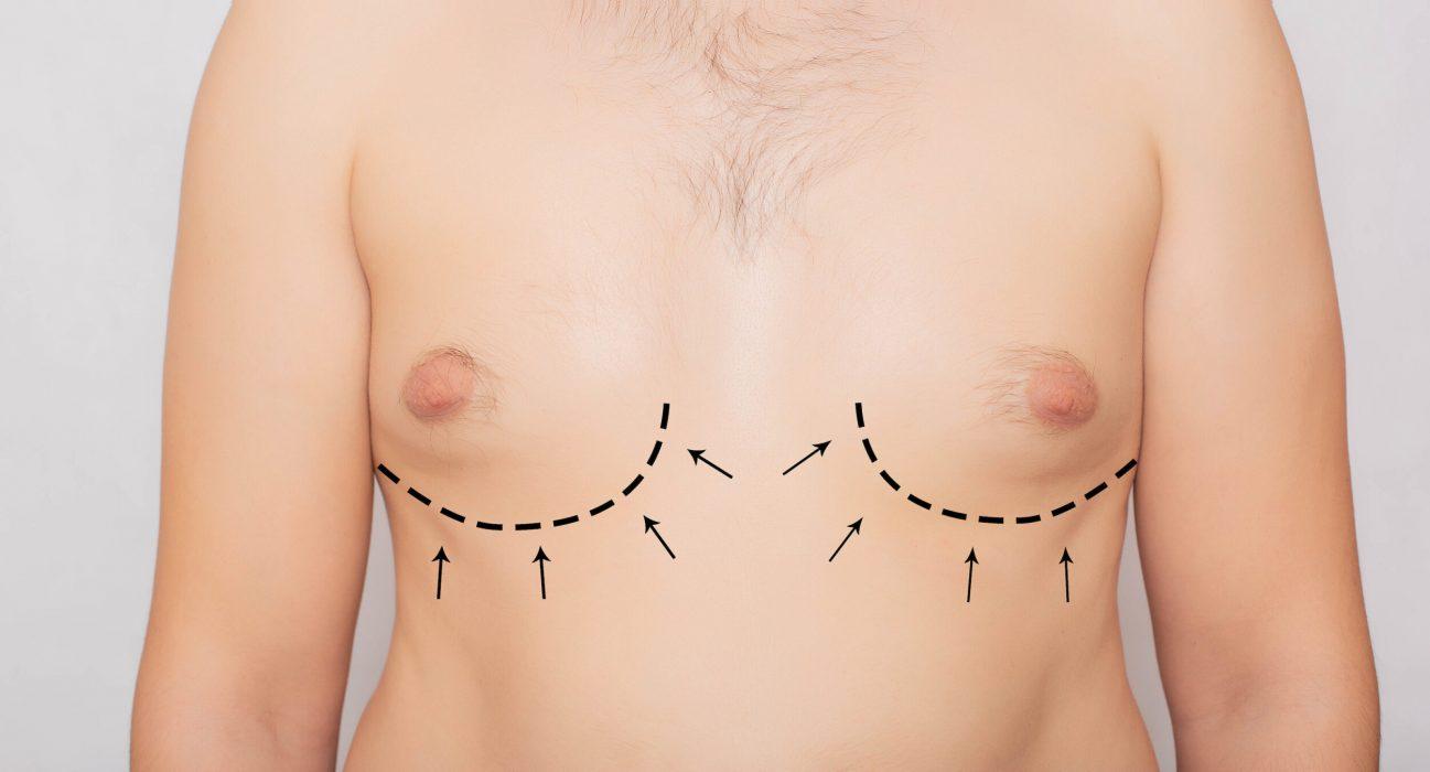 correção da ginecomastia