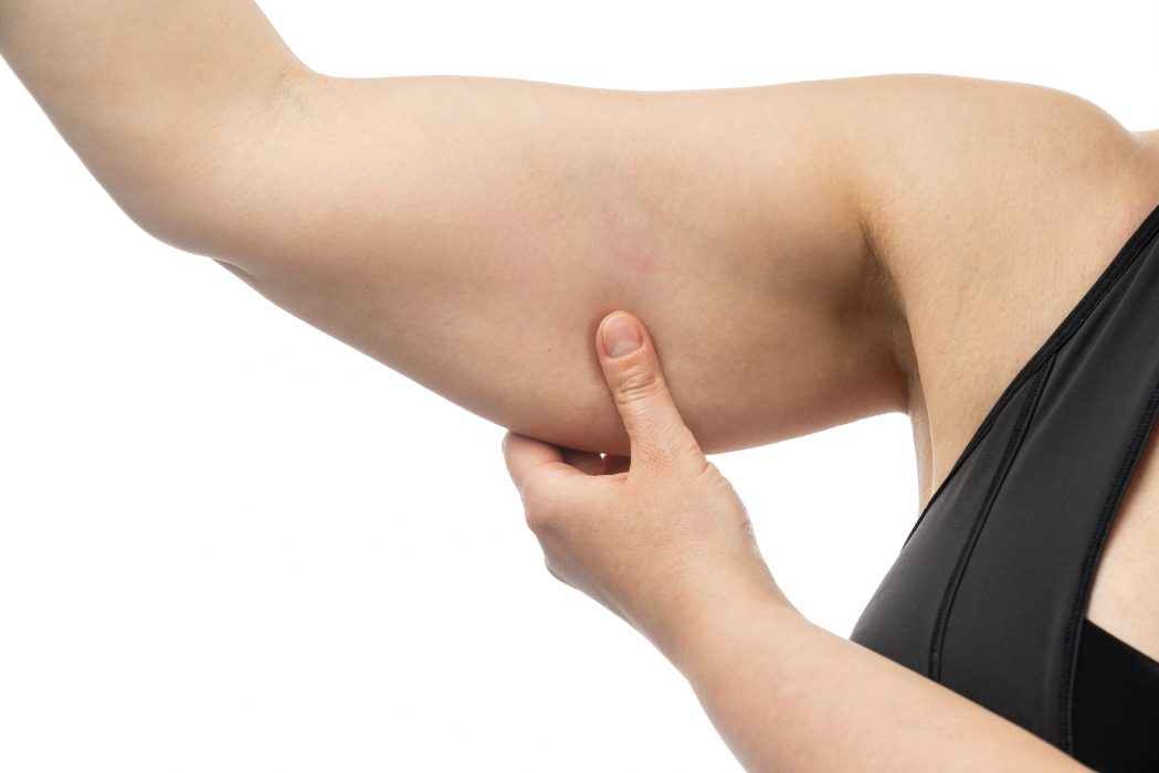 Middle-aged woman holding a hand with excess fat. On a white background, Isolated.