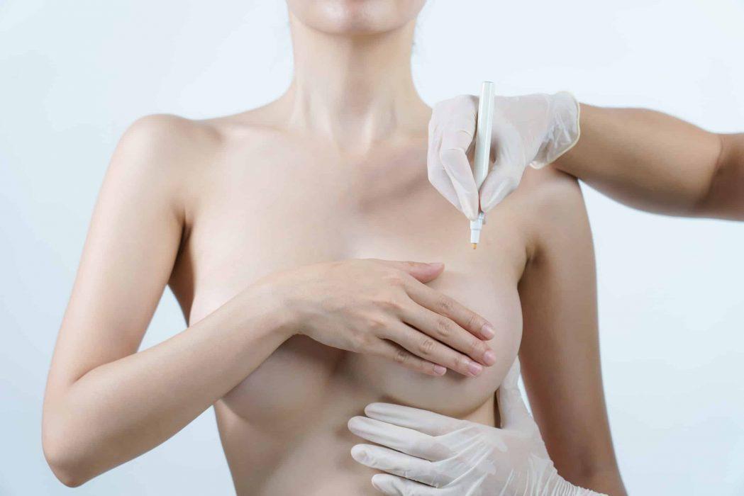 redução mamária
