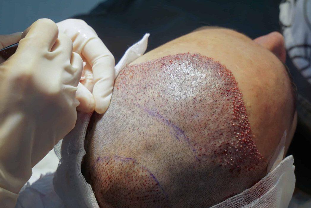 transplante capilar