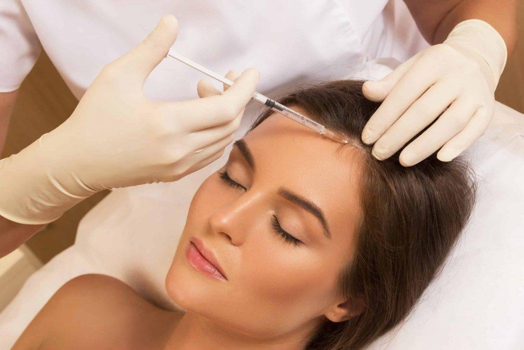mesoterapia capilar
